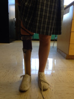 This is the outcome of our prosthetic leg, being used by Rebecca.B